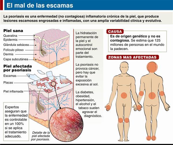 La loción de la psoriasis con el pincel